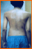 Post-Surgery Scoliosis Patient